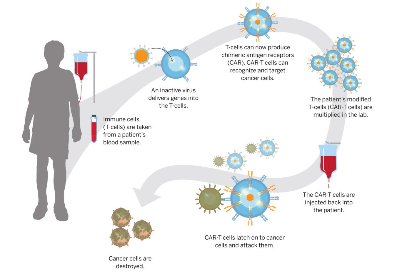 graphic of CAR-T Cell therapy.