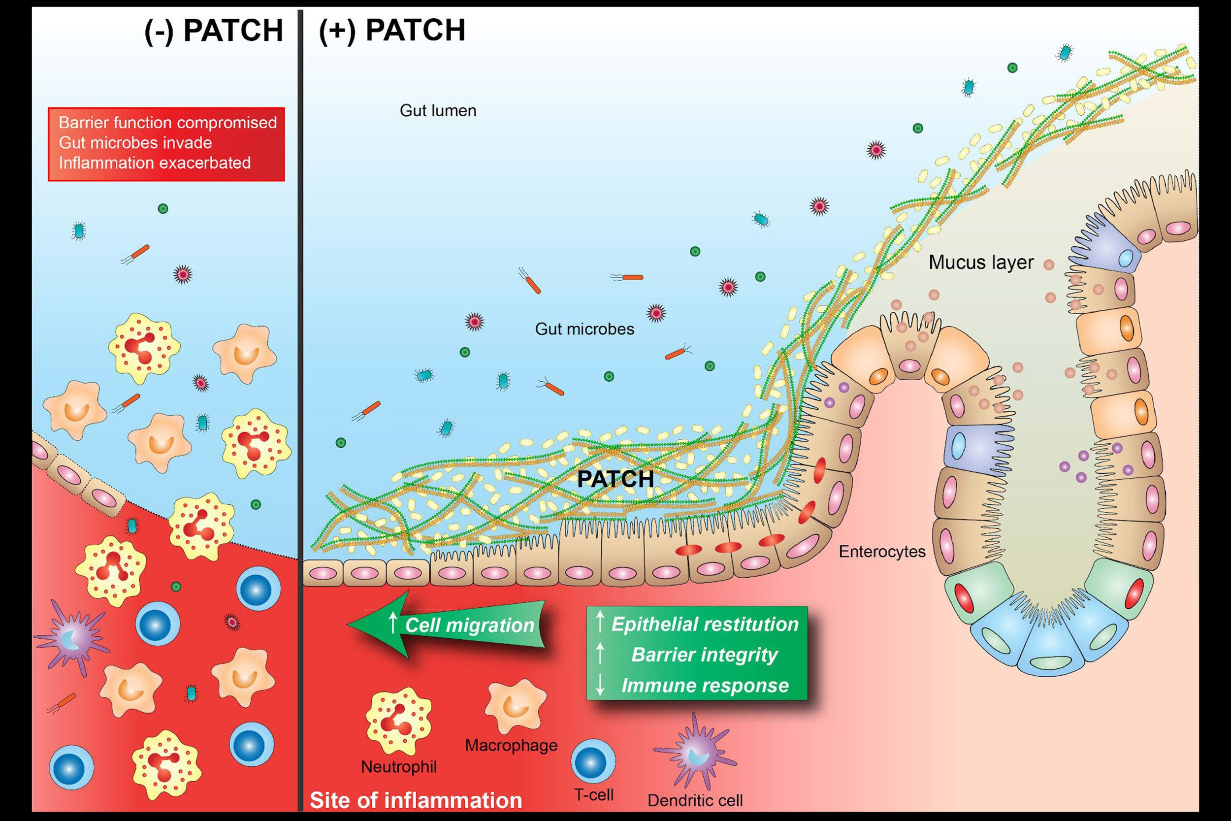 Graphic showing how bioactive material works in the intestines.