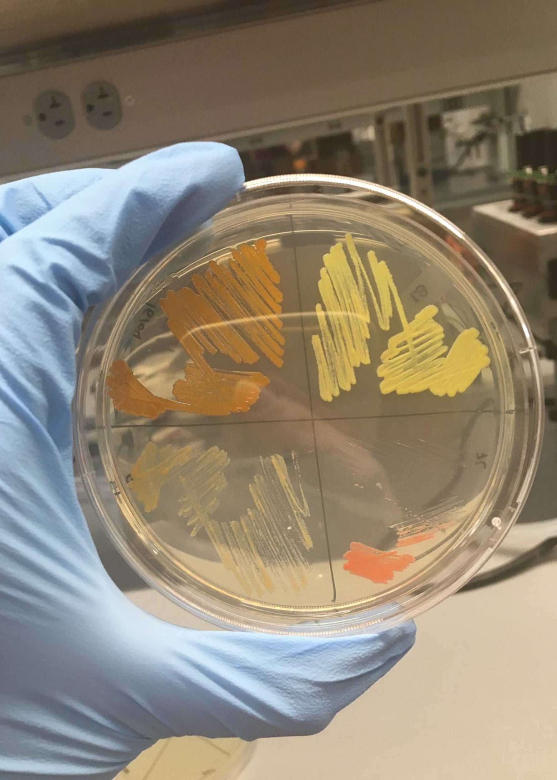 Samples of bacteria.