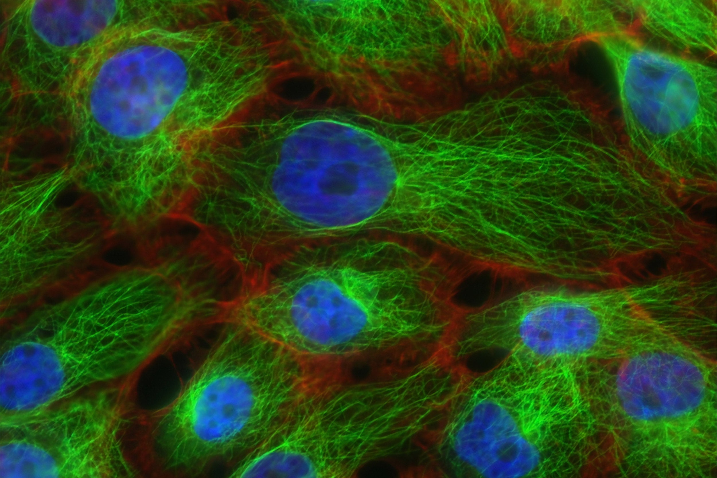 Human breast cancer cells.