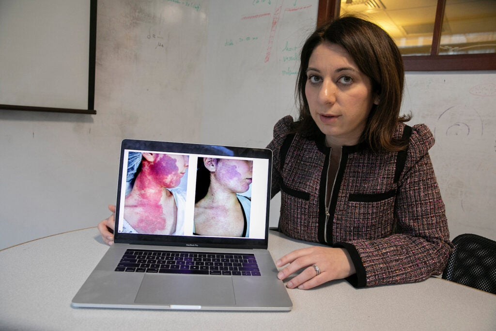 Dr. Lilit Garibyan showing the before and after of surgery on her laptop
