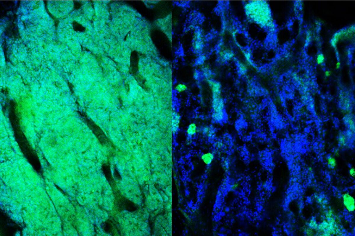 Bone marrow showing leukemia cells.