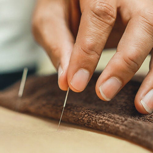 Person receiving acupuncture.