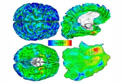 Brain PET sanc
