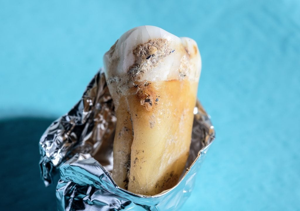 Close up of ancient tooth.