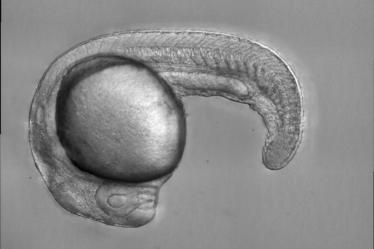 Zebrafish embryo.