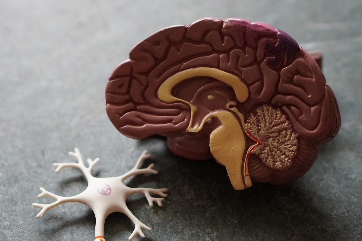 Plastic brain model.