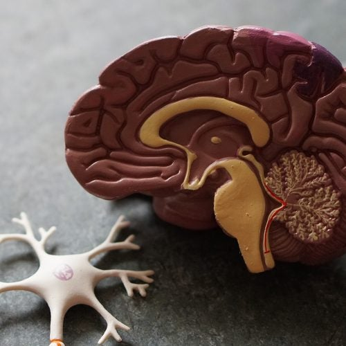 Plastic brain model.