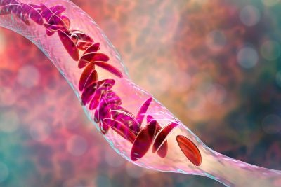 Sickle cell anemia, 3D illustration.