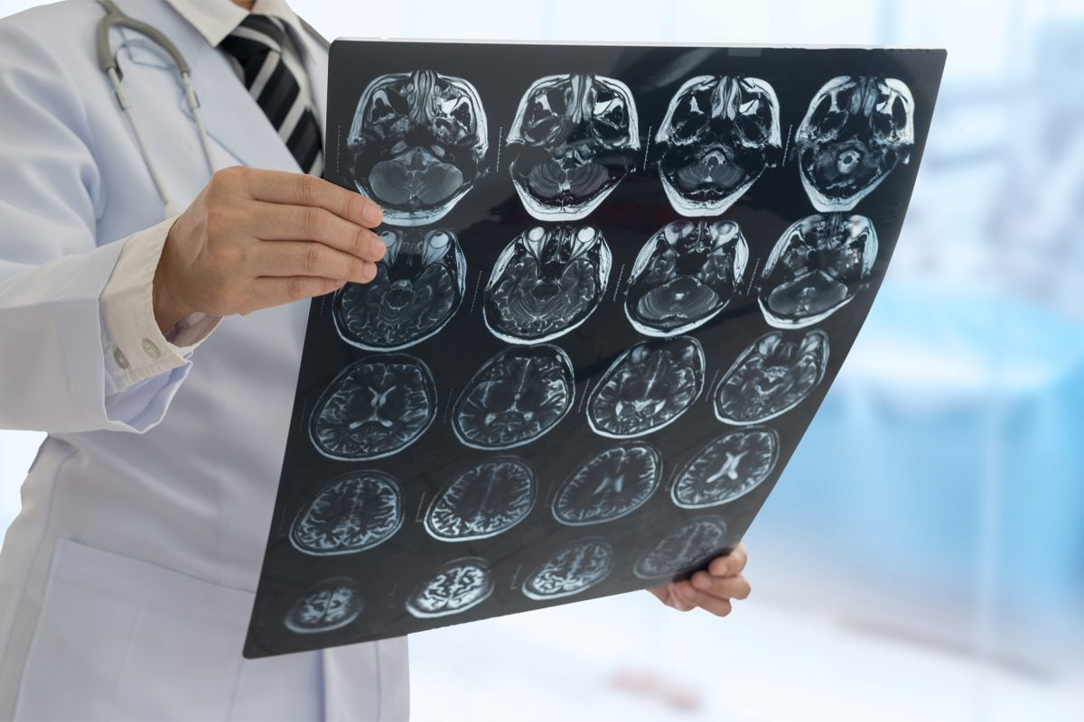 Doctor looking at brain scans.